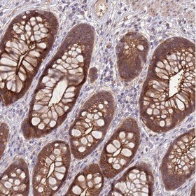Immunohistochemistry (Formalin/PFA-fixed paraffin-embedded sections) - Anti-Shroom 3 antibody (ab151009)