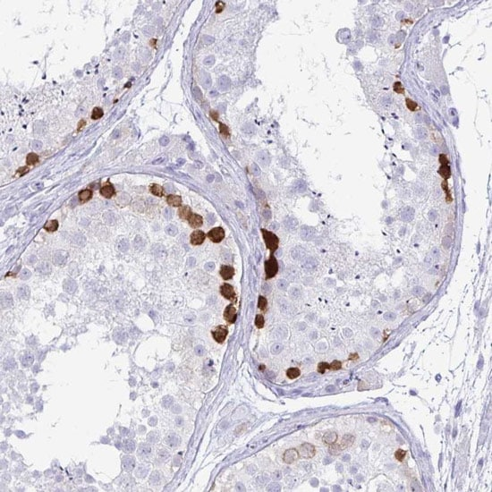 Immunohistochemistry (Formalin/PFA-fixed paraffin-embedded sections) - Anti-FAM194A antibody (ab151024)