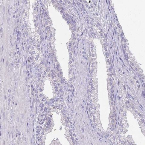 Immunohistochemistry (Formalin/PFA-fixed paraffin-embedded sections) - Anti-CCDC42B antibody (ab151025)