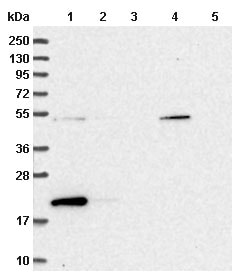 Western blot - Anti-Dysferlin interacting protein 1 antibody (ab151032)