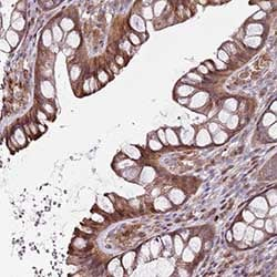 Immunohistochemistry (Formalin/PFA-fixed paraffin-embedded sections) - Anti-Dysferlin interacting protein 1 antibody (ab151032)