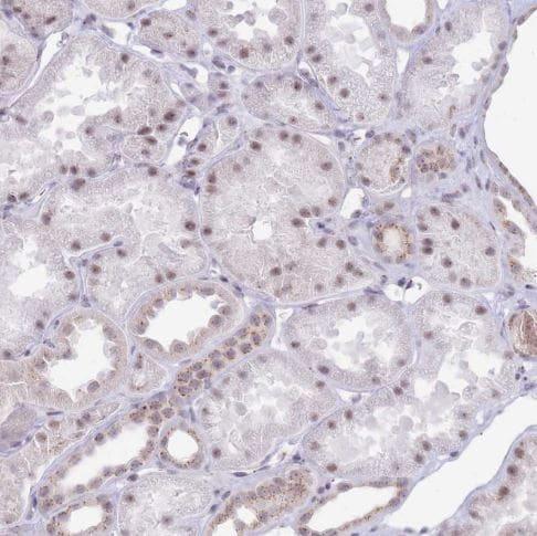 Immunohistochemistry (Formalin/PFA-fixed paraffin-embedded sections) - Anti-INO80C antibody (ab151046)
