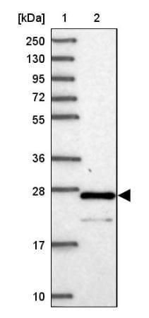 Western blot - Anti-C6orf203 antibody (ab151066)