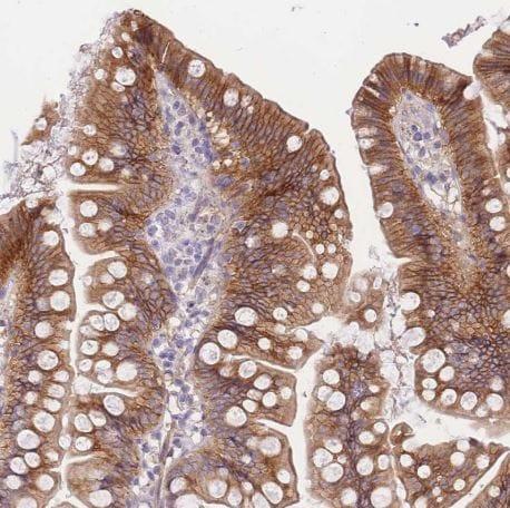 Immunohistochemistry (Formalin/PFA-fixed paraffin-embedded sections) - Anti-smAKAP antibody (ab151068)