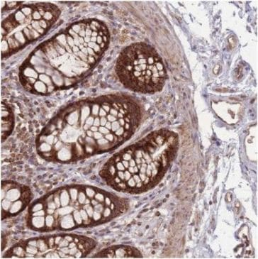 Immunohistochemistry (Formalin/PFA-fixed paraffin-embedded sections) - Anti-LYRM7 antibody (ab151089)