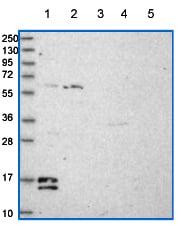 Western blot - Anti-C19orf25 antibody (ab151093)