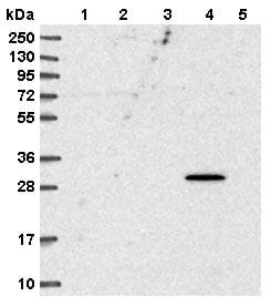 Western blot - Anti-SPEF1 antibody (ab151100)