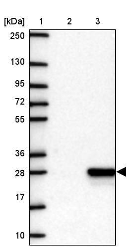 Western blot - Anti-CRYGN antibody (ab151101)