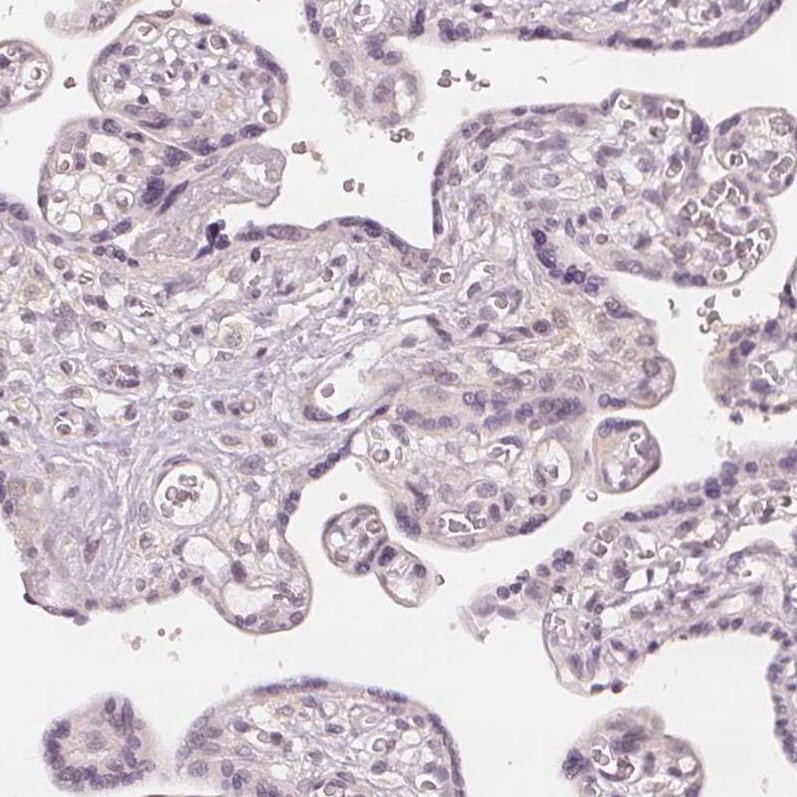 Immunohistochemistry (Formalin/PFA-fixed paraffin-embedded sections) - Anti-SLC34A1 antibody (ab151129)