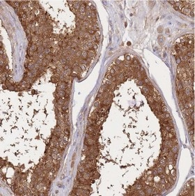 Immunohistochemistry (Formalin/PFA-fixed paraffin-embedded sections) - Anti-AE 4 antibody (ab151133)