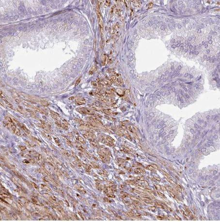 Immunohistochemistry (Formalin/PFA-fixed paraffin-embedded sections) - Anti-MAP7D2 antibody (ab151140)