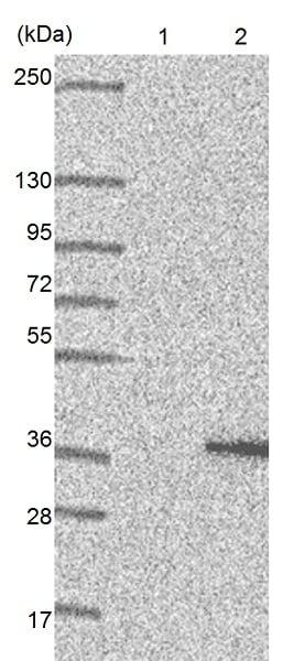 Western blot - Anti-FAM210A antibody (ab151142)