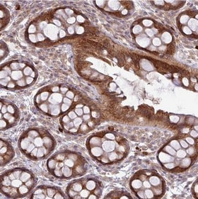 Immunohistochemistry (Formalin/PFA-fixed paraffin-embedded sections) - Anti-FAM222B antibody (ab151147)