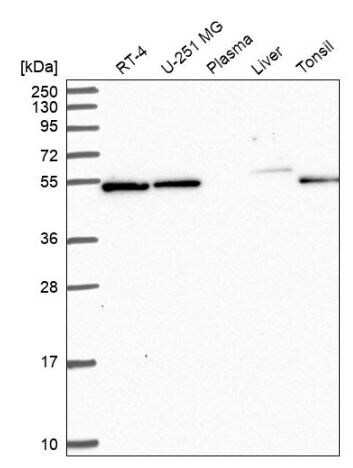 Western blot - Anti-C7orf26 antibody (ab151160)