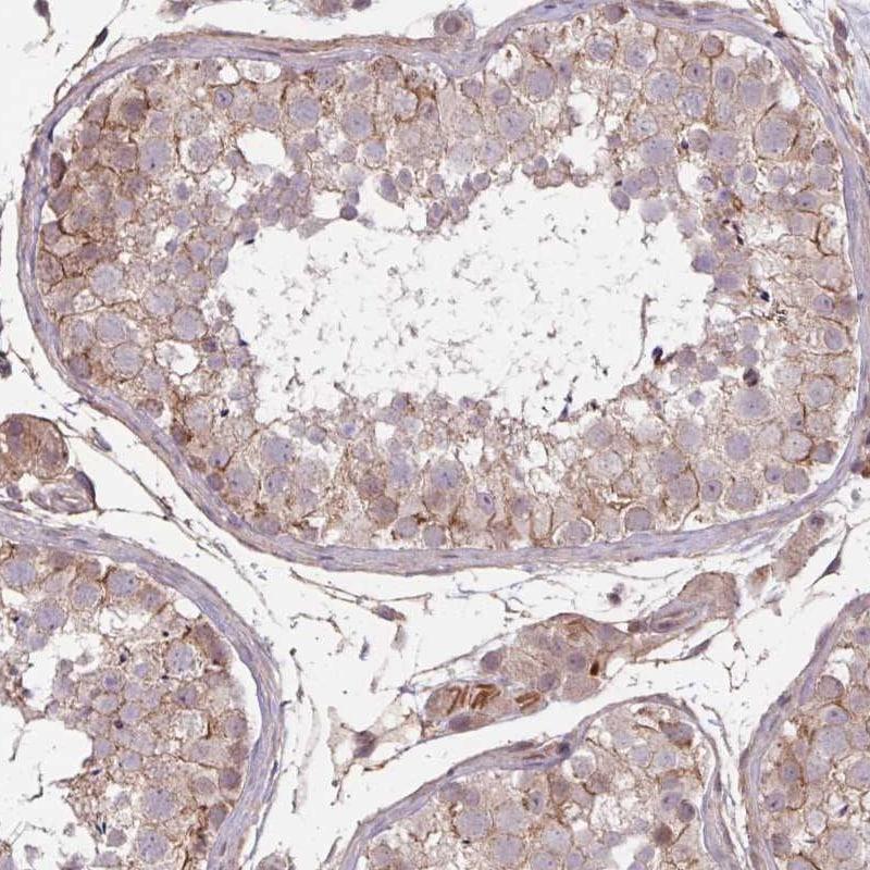 Immunohistochemistry (Formalin/PFA-fixed paraffin-embedded sections) - Anti-TMEM88 antibody (ab151166)