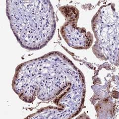 Immunohistochemistry (Formalin/PFA-fixed paraffin-embedded sections) - Anti-CC2D2A antibody (ab151210)
