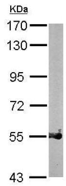 Western blot - Anti-PRMT3 antibody (ab151236)