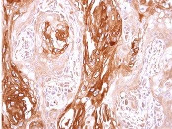 Immunohistochemistry (Formalin/PFA-fixed paraffin-embedded sections) - Anti-SEC23B antibody (ab151258)