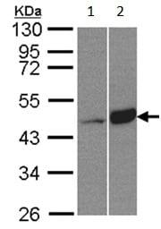Western blot - Anti-BCKDK antibody (ab151297)
