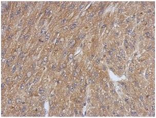 Immunohistochemistry (Formalin/PFA-fixed paraffin-embedded sections) - Anti-TSPAN3 antibody (ab151299)