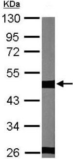 Western blot - Anti-beta II Tubulin antibody (ab151318)