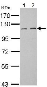 Western blot - Anti-FILIP1L antibody (ab151331)