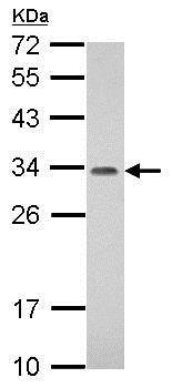 Western blot - Anti-PROSC antibody (ab151332)