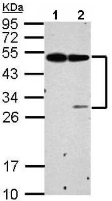 Western blot - Anti-EPCR/CD201 antibody (ab151403)