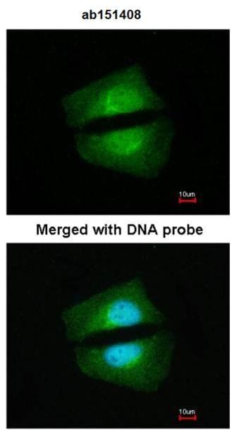 Immunocytochemistry/ Immunofluorescence - Anti-TAB1 antibody (ab151408)