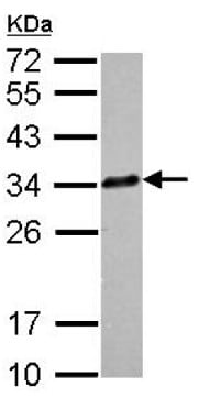 Western blot - Anti-Clathrin light chain antibody (ab151417)