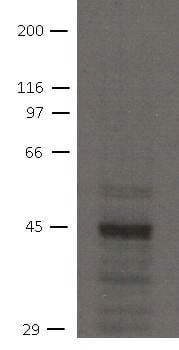 Western blot - Anti-NHERF-2/SIP-1 antibody [32B6] (ab151443)