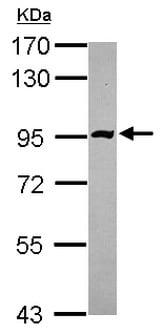 Western blot - Anti-PDE10A antibody - C-terminal (ab151454)