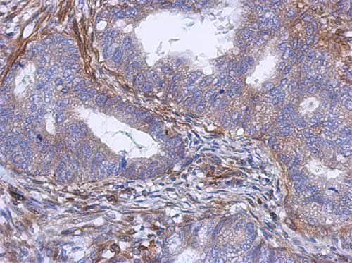 Immunohistochemistry (Formalin/PFA-fixed paraffin-embedded sections) - Anti-PABPC5 antibody (ab151459)