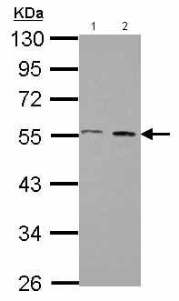Western blot - Anti-AMSH antibody - N-terminal (ab151475)