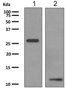 Western blot - Anti-MCP1 antibody [EP1361] (ab151538)