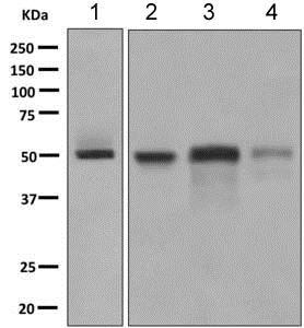 Western blot - Anti-Factor VII antibody [EP6185(2)] (ab151543)