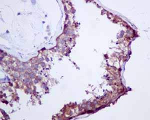 Immunohistochemistry (Formalin/PFA-fixed paraffin-embedded sections) - Anti-Cellular Apoptosis Susceptibility/CSE1L antibody [EPR10327(B)] (ab151546)