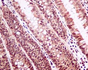Immunohistochemistry (Formalin/PFA-fixed paraffin-embedded sections) - Anti-PI3 Kinase p110 beta antibody [EPR5515(2)] (ab151549)