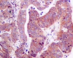 Immunohistochemistry (Formalin/PFA-fixed paraffin-embedded sections) - Anti-RPS10 antibody [EPR8545] (ab151550)