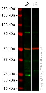 Western blot - Anti-Hsp22/HSPB8 antibody [EPR9714] (ab151552)