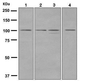 Western blot - Anti-Dynamin 2 antibody [EPR9053(2)(ABC)] (ab151555)