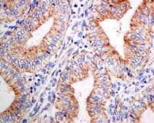 Immunohistochemistry (Formalin/PFA-fixed paraffin-embedded sections) - Anti-KIF5B antibody [EPR10277(B)] (ab151558)
