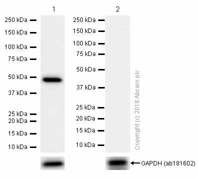 Western blot - Anti-GABA A Receptor alpha 1 antibody [EPR5401(2)] (ab151573)