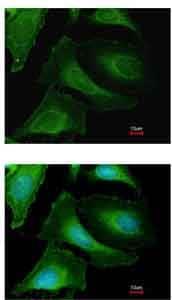 Immunocytochemistry/ Immunofluorescence - Anti-Creatine kinase B type antibody (ab151579)
