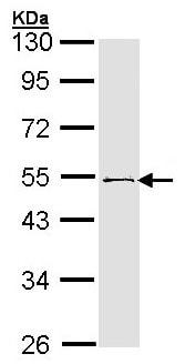 Western blot - Anti-RNF13 antibody - C-terminal (ab151601)