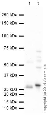 Western blot - Anti-SDHB antibody (ab151684)