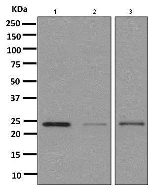 Western blot - Anti-TMS1/ASC antibody [EPR10402(B)] (ab151700)