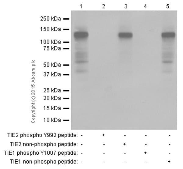 Western blot - Anti-TIE1 (phospho Y1007) + TIE2 (phospho Y992) antibody [EPR1053(N)(B)] (ab151704)