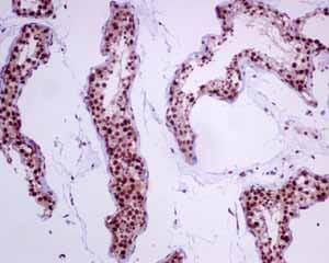 Immunohistochemistry (Formalin/PFA-fixed paraffin-embedded sections) - Anti-VRK1 antibody [EPR10623(B)] (ab151706)
