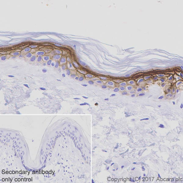 Immunohistochemistry (Formalin/PFA-fixed paraffin-embedded sections) - Anti-LYPD3 antibody [EPR9107] (ab151709)